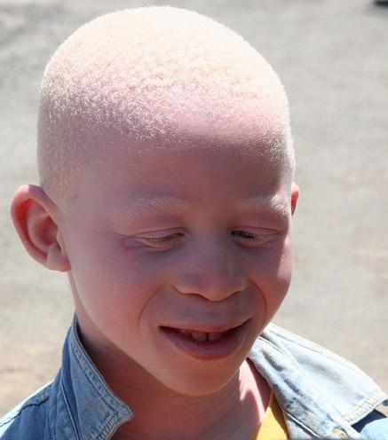 Albino Man